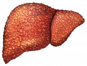 Гепатит С и цирроз печени